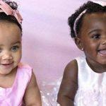 Gêmeas com cores de pele diferentes fazem sucesso no Instagram