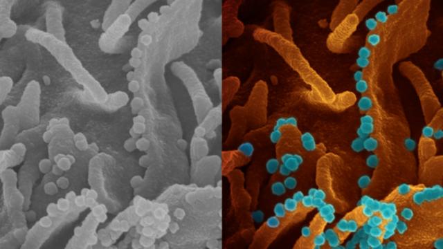 https://revistaraca.com.br/wp-content/uploads/2020/05/imagem-do-coronavirus-deixando-uma-celula-infectada-para-se-multiplicar-divulgada-por-medicos-do-instituto-nacional-de-saude-nih-dos-eua-1588247672507_v2_900x506-640x360.png