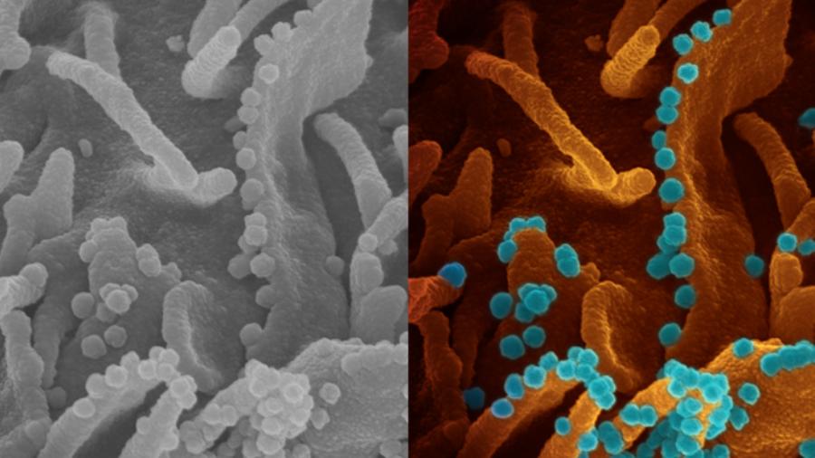 https://revistaraca.com.br/wp-content/uploads/2020/05/imagem-do-coronavirus-deixando-uma-celula-infectada-para-se-multiplicar-divulgada-por-medicos-do-instituto-nacional-de-saude-nih-dos-eua-1588247672507_v2_900x506.png